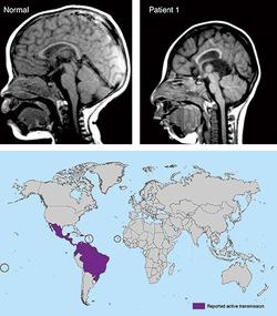 中南米を中心に感染が拡大する「ジカ熱」